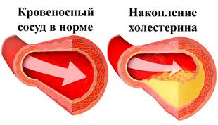 здоровый сосуд и накопление холестерина