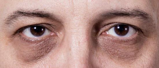 круги под глазами у мужчин