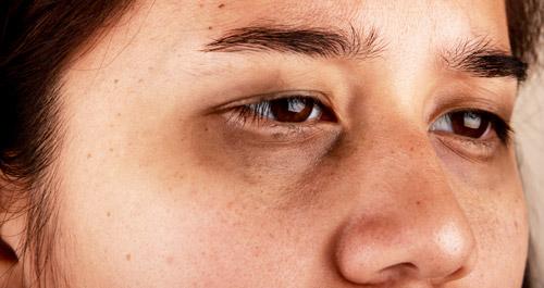 морщины и круги под глазами у женщин