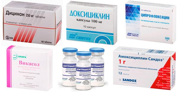 рекомендуемые лекарства: Дицинон, Доксициклин, Цефтриаксон и др.