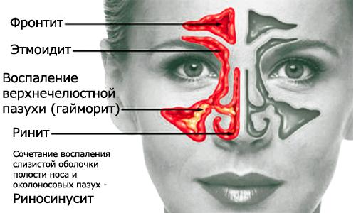 Как лечить пристеночное утолщение слизистой
