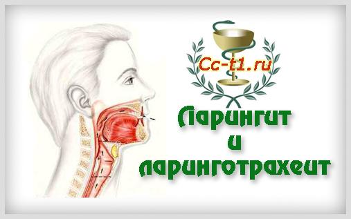 Ларингит и ларинготрахеит как следствие простудных заболеваний