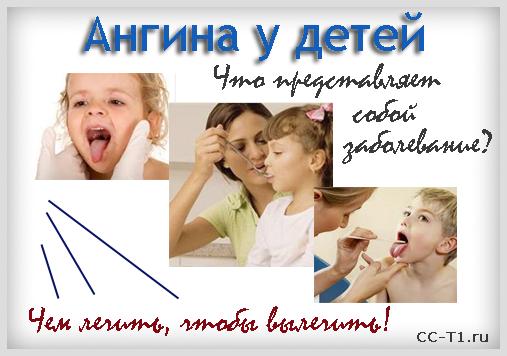 Ангина у детей