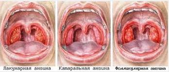 Классификация детских ангин