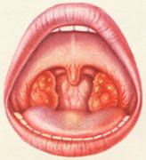 фолликулярная ангина